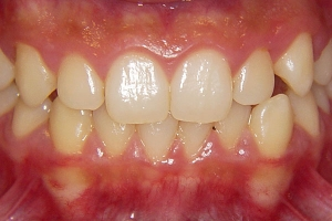 Crowding and Anterior Crossbite — Before