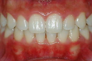 Crowding and Anterior Crossbite — After