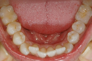 Crowding and Tipped Incisor — Before