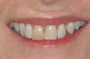 Case 7a - whitening - cosmetics