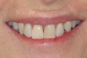 Case 7b - whitening - cosmetics