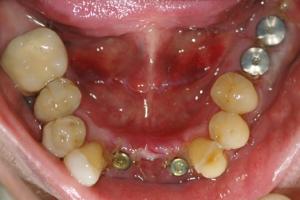 Implants-1-of-4